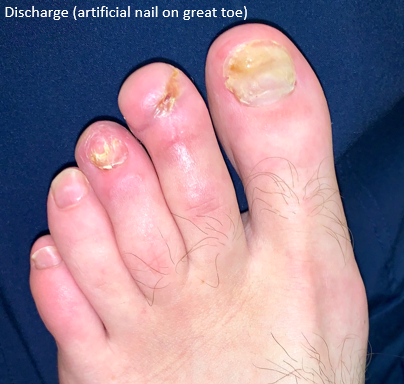 Use of Transdermal Oxygen (OxyBand) for Distal Toe Re-attachment